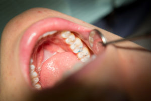 gum_disease_treatment