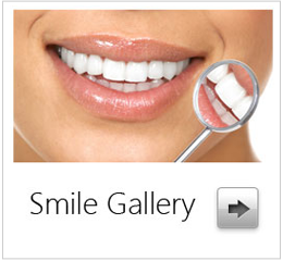 chatsworth-dentist-smile-gallery